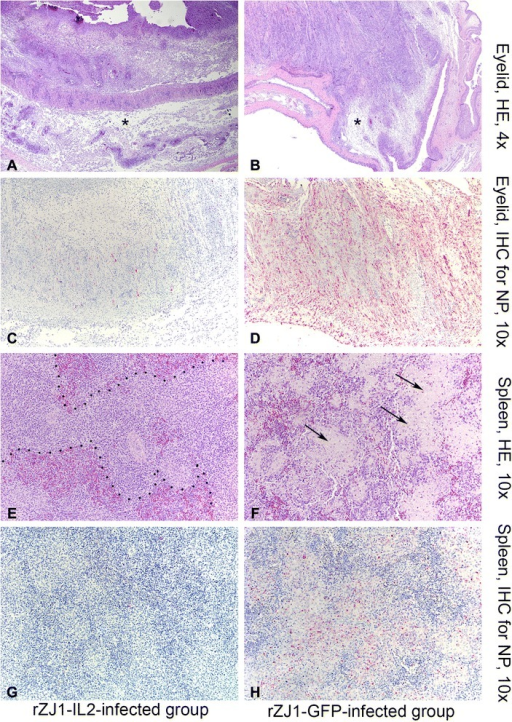 Photomicrographs illustrating hematoxylin and eosin staining (HE, first and third rows of panels) and immunohistochemistry (IHC, second and fourth rows of panels) on sections of eyelid (panels a-d) and spleen (e-f) at day 5 pi. Tissues were harvested from 4-week-old White Leghorn chickens infected with rZJ1-IL2 (first column of panels), and rZJ1-GFP (second column of panels). Alkaline phosphatase method and hematoxylin counterstain. In the eyelid, histopathological changes consist of severe edema (asterisks), which markedly expands the submucosa, accumulation of pleomorphic cellular infiltrate (macrophages, heterophils, lymphocytes), exudation of fibrin, and multifocal areas of coagulative necrosis. This severe conjunctivitis is similar in intensity in both rZJ1-Il2 (panel a) and rZJ1-GFP (panel b) groups. Presence of lesion in the eyelid is associated with positive immunohistochemical labeling, which is intense and diffuse in rZJ1-GFP-infected birds (panel d), while in rZJ1-IL2-infected birds is less intense and multifocal (panel c). In the spleen, rZJ1-IL2-infected birds display mild to moderate lymphoid depletion and accumulation of prominent macrophage in the ellipsoid areas, which appear confluent (dashed lines, panel e). These changes are associated with minimal NDV immunohistochemical labeling, which is not present at day 5 pi (panel g). Birds infected with rZJ1-GFP show severe lesions in the spleen, consisting of lymphoid depletion, prominent macrophages, exudation of fibrin and accumulation of necrotic debris (arrows, panel f). These lesions are associated with intense and diffuse immunohistochemical labeling for NDV (panel h)