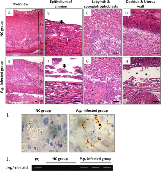 Dental Infection of P.g. Induces Defects in Placental Tissues in Mice.Representative histological findings in gd 15-placental tissue from the NC group (A-D) and P.g.-infected group (E-H) by H&E staining (n = 6 for each group). (A, E) Overview of mouse placenta: La, Labyrinth; Sp, Spongiotrophoblasts; De, Decidua; Ut, Uterus wall. (B, F) Epithelium of amnion: in the P.g.-infected group, amnion epithelium (black arrow) is degenerative and detached from chorionic plate (white arrow). (C, G) Labyrins and Spongiotrophoblasts layers: Trophoblasts and endothelial cells are necrotic (*) in P.g.-infected group. (D, H) Decidua and uterus wall: Placental abruption is evident in the P.g.-infected group. ** shows the separation between placenta and uterus at maternal-fetus junction. (I) Immunolocalization of P.g. (brown pigments) (n = 6 for each group); 1000x-magnification by oil-immersed microscopy. (J) Gene expression for the mgl-gene of P.g-W83 strain by nested PCR; representative results from 6 mice for each group. PC, positive control. Scale bars, 100μm. Olympus BH2 microscope and Nikon digital sight DS-L2 camera were used for capturing images.
