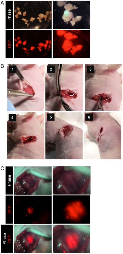 An orthotopic pancreatic tumor xenograft model in mice. (A