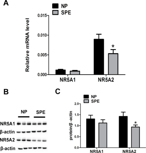 NR5A1 and NR5A2 mRNA and protein expression in the decidual tissues of women with and without SPE.(A) The mRNA expression of NR5A1 and NR5A2 in the decidual tissues of subjects from the NP and SPE groups. (B) The protein expression of NR5A1 and NR5A2 in the decidual tissues of subjects from the NP and SPE groups. (C) The relative expression levels of the NR5A1 and NR5A2 proteins compared with that of β-actin (n = 23 for each group). NP, normal pregnancy group. SPE, severe preeclampsia group. The data were shown as mean ± SEM, *P < 0.05.