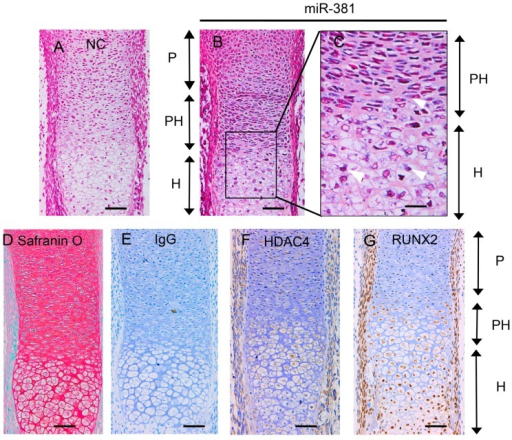 Evaluation of miR-381, HDAC4, and RUNX2 expression in E16.5 mouse radius bones. In situ hybridization analysis of (A) the negative control and (B) miR-381 expression are shown; (C) enlarged view of the boxed area in panel B; white arrows show areas of positive staining for miR-381; (D) sections were stained with safranin O/Fast Green for observation of chondrocyte morphology; and (E–G) sections were subjected to immunohistochemistry (brown) analysis using normal (E) IgG (negative control), (F) HDAC4-specific, and (G) RUNX2-specific antibodies. Scale bar = 20 μm in panel C and 50 μm in the other panels. miR-381, microRNA-381; HDAC4, histone deacetylase 4; RUNX2, Runt-related transcription factor 2. P, proliferating chondrocytes; PH, prehypertrophic chondrocytes; H, hypertrophic chondrocytes.