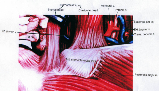 inferior thyroid vein; first rib; sternum; sternomastoid muscle; clavicle; anterior sternoclavicular joint; vertebral artery; phrenic nerve; scalenus anterior muscle; exterior jugular vein; transverse cervical artery; pectoralis major muscle