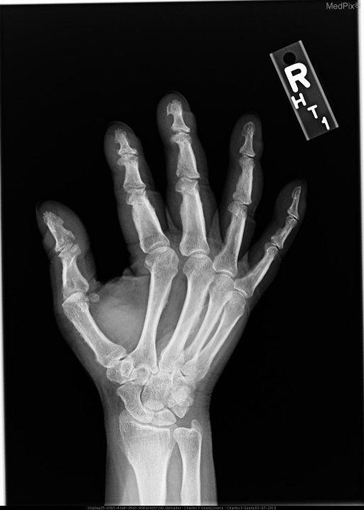 Images demonstrate fluffy diaphyseal periosteal reaction involving the radial aspect of the metacarpals, proximal phalanges and distal radius bilaterally.  Clubbing is also identified.