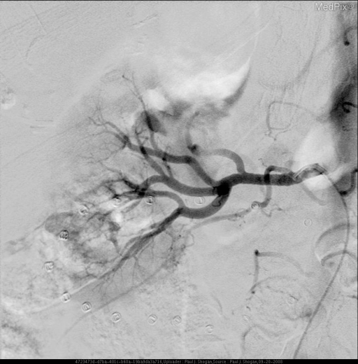 Post-embolization image shows absent flow to the mass.