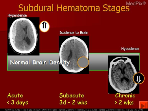 With normal CT window level and window width, an acute hematoma is hyperdense.  As blood (hemoglobin) begins to break down, it loses attenuation - eventually becoming hypoattenuating compared to brain and similar to CSF density.