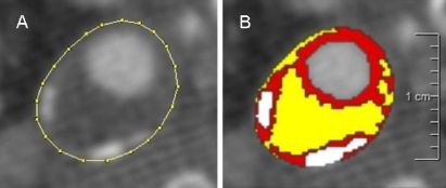 Semi-automatic assessment of plaque component areas in MDCT images. Axial MDCT image of an atherosclerotic carotid plaque; the region of interest is drawn on the outer vessel wall (a). Ranges of Hounsfield units (HU) represent three different plaque components: yellow lipid core (<60 HU), red fibrous tissue (60–130 HU), and white calcification (>130 HU) (b)