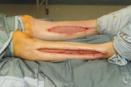 wounds in both legs post split skin graft open i. Black Bedroom Furniture Sets. Home Design Ideas
