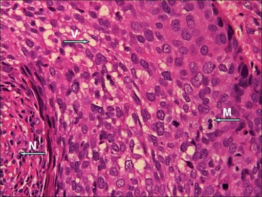 Malignant cells with vaculated cytoplasm (V), mitotic figures (M), and areas of necrosis (N) (H & E, ×60)