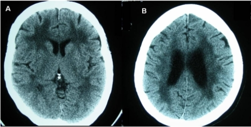 Plain CT brain at the basal ganglia (A) and corona radiata (B) levels showing periventricular white matter lucency in a patient with leuko-araiosis.