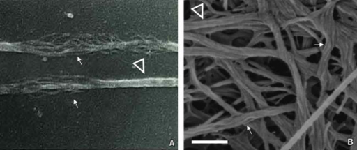 Collagen fibril disaggregation unravelling thinner collagen internal substructural units. (A) SEM image of corneal collagen fibrils treated with acetic acid and dissociated into thinner (∼10 nm) fibrillar entities (no scale bar reported, ×79,000) (adapted from Yamamoto et al. [64]). (B) Demineralized dentin collagen fibrils treated with trypsin yielding an untwistedrope like appearance and unravelling ∼20 nm substructural fibrillar disaggregates (200 nm scale bar, ×160,000).