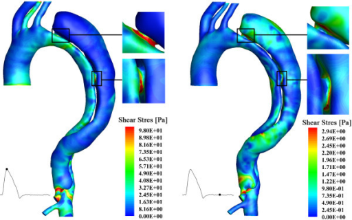 Wall shear stress distribution of the aortic dissection system. The left panel shows the results at systolic peak; and the right panel displays the results at mid-diastole.