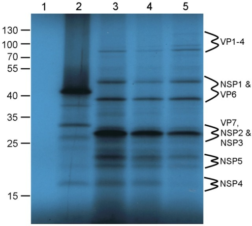 In vitro translation of RV proteins from cohorts of cDNA-derived and DLP-derived ssRNAs.In vitro translation of RV DLP derived ssRNAs. 1 µg of capped DLP ssRNA was incubated in a RRL as described, electrophoresed on a 15% SDS-PAGE alongside PageRuler™ protein markers (in kDa) and exposed to X-ray film for 4 days. Lane 1: no ssRNA; lane 2: XEF ssRNA; lanes 3 & 4: S1–11 post-capped or co-capped ssRNA respectively; lane 5: RV ssRNAs from RV RF strain DLPs. The sizes of protein markers run alongside SDS-PAGE are indicated in kDa to the right hand side and were used to predict the location of RV proteins.