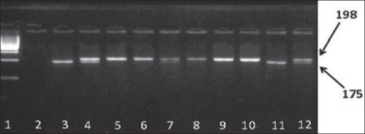 Polymorphism analysis of methylenetetrahydrofolate reductase C677T. The polymerase chain reaction products were digested by restriction enzyme Hinf I:1 (ladder 100 bp); 2 negative control; 3 positive control for homozygote (TT) genotype; 4 positive control for heterozygote (CT) genotype; 5, 6, 8, 9, 10 CC genotype (198 bp); 7, 12 CT genotype (198 bp, 175 bp); 11 TT genotype (175 bp)