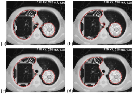 Segmentation of the human lung CT image using (a) VFC snake with , (b) VEF snake, (c) CONVEF snake with n = 1.5, h = 0.0, and (d) CONVEF snake with n = 3.0, h = 5.0.