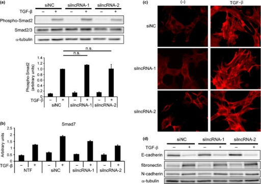 lncRNA-Smad7 does not regulate phospho-Smad2 levels or TGF-β-induced EMT. (a) JygMC(A) cells were transfected with siRNA as indicated and stimulated with TGF-β for 48 h. Phospho-Smad2 and total Smad2/3 levels were determined by immunoblotting (top panel). The bottom graph shows quantification of phospho-Smad2 normalized to total Smad2/3. n.s.: not significant. (b) Effect of siRNA for lncRNA-Smad7 on Smad7 expression evaluated by quantitative RT-PCR (qRT-PCR). Transfected cells were stimulated with TGF-β for 48 h. NTF, no transfection; error bars, standard deviations. (c) NMuMG cells were reverse-transfected with siRNA as indicated. Twelve hours later, cells were stimulated with TGF-β for 24 h and fixed. F-actin formation was evaluated by phalloidin staining. (d) NMuMG cells were treated as in (c) and expression of EMT marker proteins was determined by immunoblotting.