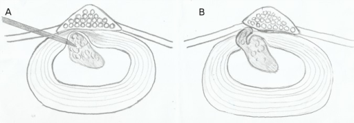 1A shows the position of the Disc-FX cannula relative to the focal disc relapse. 1B shows the possibility of a recurrent disc prolapse through the annulotomy rent.