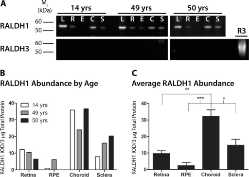 Western blot analysis and quantification of RALDH1 and RALDH3 in postnatal human ocular tissues.(A) Cytosol fractions from ocular tissues of donors aged 14, 49, and 50 years were immunblotted with anti-RALDH1 or anti-RALDH3. Top panel: RALDH1 (∼ 55–57 kDa) was abundantly expressed in the lens and choroid, moderately expressed in the sclera, and faintly detected in the retina and RPE. Bottom Panel: RALDH3 was not detected in postnatal ocular tissues at any of the ages examined. 3 μg total protein/lane was loaded on the blot. 1.25 μg recombinant human RALDH3 (R3) was loaded as a positive control. (B) Abundance of RALDH1 was measured as the integrated optical density (IOD) per 3 μg total protein of RALDH1-immunopositive bands. (C) Average RALDH1 abundance (± s.e.m.) in ocular tissues of all donors presented in (B) (n = 3). *p < 0.05, **p < 0.01, ***p < 0.001 (one-way ANOVA followed by Tukey-Kramer test for multiple comparisons).