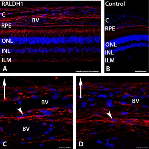 Confocal images of RALDH1 expressing cells in postnatal human ocular tissue after immunolabeling with an anti-RALDH1 antibody.(A) Low power magnification of ocular tissues demonstrating RALDH1 labeling (red) in the retina and choroid. (B) Negative control slide (non-immune IgG used in place of primary antibody) demonstrating no labeling in the retina and choroid and auto-fluorescence in the RPE. (C, D) Choroid sections demonstrating RALDH1 labeling in extravascular cells throughout the choroidal stroma (arrowhead). Upward arrow in (C-D) indicates orientation for the scleral side of the choroid. Nuclei were counterstained with DAPI (blue). BV, blood vessel; C, choroid; RPE, retinal pigment epithelium; ONL, outer nuclear layer; INL, inner nuclear layer; ILM, inner limiting membrane. Scale bars = 100 μm in A, B; 20 μm in C, D.