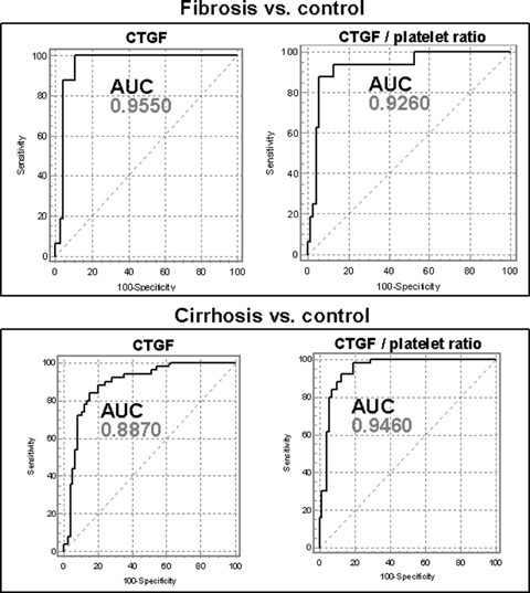 Receiver-operating-characteristic (ROC) curves of the diagnostic power of serum CTGF and of the CTGF/platelet ratio for fibrosis and cirrhosis, respectively. AUC, area under the curve. Data compiled from ref. [55].