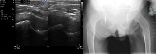Ultrasound and X-ray images of hip joints.(Left) Transverse scan of hip joint a 12-year-old patient with a severe phenotype of MPS II. (Right) Radiograph of the pelvis of a 12-year-old patient with a severe phenotype of MPS II: dysostosis multiplex (irregular shape of the pelvis, hypoplastic hip acetabulum, dysplastic hips, osteonecrosis of the femoral heads with flattened acetabula, lopsided head of femur bones).