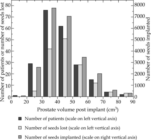 The number of patients, number of seeds lost, and number of seeds implanted versus the prostate volume post implant. The number of patients and seeds lost are shown in the left scale, while the number of seeds implanted is shown in the right scale. The horizontal axis is the prostate volume post implant with a bin size of 10 cm3