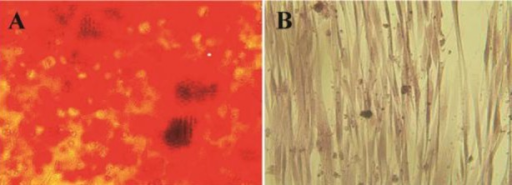The in vitro osteogenic differentiation of hAM-MSC. A) The osteogenic differentiation of hAM-MSC was followed by Alizarin red S staining. B) Red calcium deposits could not be seen in negative control that was cultured in the absence of the differentiation medium.