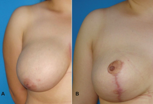 Picture of a 33-year-old female patient who underwent superomedial pedicle reduction mammaplasty. (a) Preoperative frontal view of the right breast, and (b) postoperative 6th month frontal view of the right breast were demonstrated in these figures