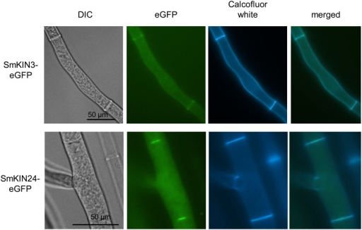 Localization of SmKIN3-eGFP and SmKIN24-eGFP in S. macrospora.SmKIN3-eGFP and SmKIN24-eGFP localize to septa. For visualization of cell walls and septa, hyphae were co-stained with Calcofluor white. DIC = differential interference contrast microscopy, scale bars as indicated.