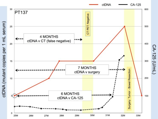 Circulating tumor DNA can detect relapse earlier than CA125 and CT scan imaging.In this representative example, increases in ctDNA levels in Patient 137 levels precede a rise in CA-125 levels by six months and pre-date positive identification of tumor growth requiring bowel resection seven months later. CT scanning was non-specific and patient was brought to the operating room for exploratory surgery, which revealed the presence of tumor.