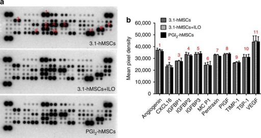 PGI2-hMSCs did not affect the natural ability of hMSCs to release pro-survival and pro-angiogenic factors under hypoxia.(a) Representative images of proteome profiler arrays probed with 3.1-hMSC-conditioned medium (CM), 3.1-hMSCs+ILO-CM, or PGI2-hMSC-CM. (b) Analysis of the differential expression of angiogenic factors and chemokines from three independent arrays. CM collected from 3.1-hMSCs, 3.1-hMSCs+ILO or PGI2-hMSCs contained similar levels of soluble proteins known to promote survival and angiogenesis under ischaemic conditions. Data are shown as mean±s.e.m. from three independent arrays. CXCL16, chemokine (C–X–C motif) ligand 16; IGFBP1-3, insulin-like growth factor-binding protein 1-3; MCP-1, monocyte chemoattractant protein-1; PIGF, placental growth factor; TIMP-1, TIMP metallopeptidase inhibitor 1; TSP-1, thrombospondin-1; VEGF, vascular endothelial growth factor.