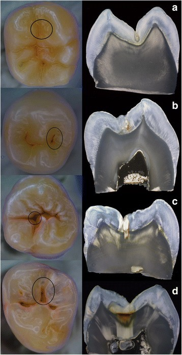 a-d Examples of different teeth used in the study. The investigation sites are marked with a circle: a Example of a tooth being scored as sound while being histologically carious. b Tooth with ICDAS score 2 and corresponding histological images. c Tooth with ICDAS score 3 and corresponding histological images. d Tooth with ICDAS score 4 and corresponding histological images