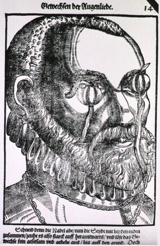 <p>Close-up view of the head of a man with large cysts on his eyelids; the cysts have been pierced with a needle, and thread (a seton) has been placed in the openings.</p>