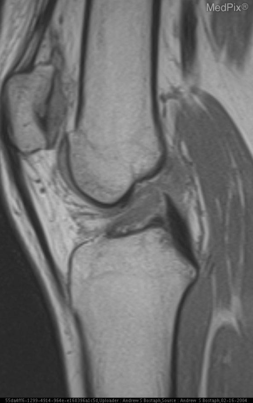 "Figure 2:  Sagital PD shows a ""low lying"" ACL consistent with tear."