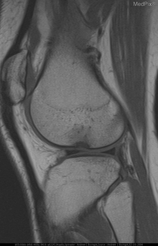 Figure 3:  Sagital PD with FS shows an ostoeochondral defect of the lateral femoral condyle corresponding to the radiographic deep lateral femoral notch.