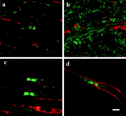 In the wild-type mice paranodin (green) is highly concentrated in the paranodal regions of spinal cord (a) and sciatic nerve (c) axons. In contrast, the galactolipid-deficient mice exhibit a more diffuse labeling pattern. In the mutant spinal cord (b) paranodin is evenly distributed in the axolemma throughout the internode. In the sciatic nerve (d) of these mice, paranodin is concentrated in the paranode but the interface between the paranode and the juxtaparanode is not clearly demarcated. a and b, eight images 0.26 μm apart; double-labeled for paranodin in green and phosphorylated neurofilament in red. c and d, eight images 0.4 μm apart; double-labeled for paranodin in green and myelin basic protein in red. Bar, 5 μm.