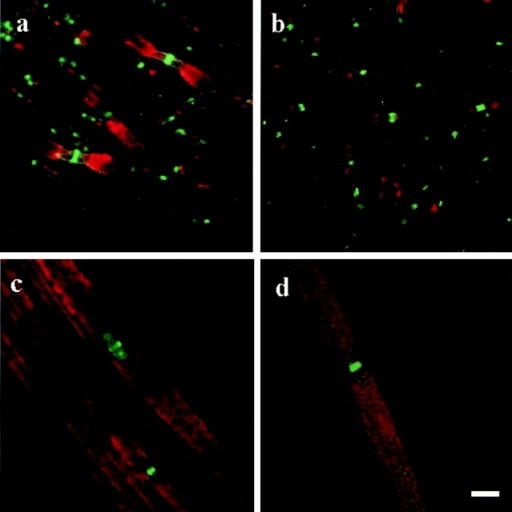 In the spinal cord, neurofascin (green) was restricted to the nodes of Ranvier in both the wild-type (a) and the mutant (b) mice. a and b are also labeled for the potassium channels (red) in an effort to assist with the recognition of nodal/paranodal regions. In the sciatic nerve (c and d), neurofascin also is concentrated in the node; however, some protein is also located in the paranodal regions of the wild-type (c) and mutant (d) mice. a and b, six images 0.31 μm apart; double-labeled for neurofascin in green and potassium in red. c and d, four images 0.26 μm apart; double-labeled for neurofascin in green and myelin basic protein in red. Bar, 5 μm.