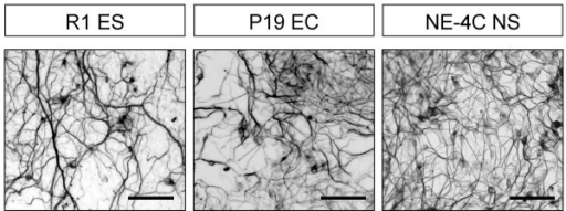 Neurons develop from ES, EC and NE-4C cells in response to treatment with retinoic acid. Cultures were stained for neuron-specific βIII-tubulin in a phase of differentiation corresponding to stage 4 of NE-4C development: the 15th day of induced differentiation of R1 (ES), the 4th day for P19 (EC) and the 7th day for NE-4C. Bars: 50 μm