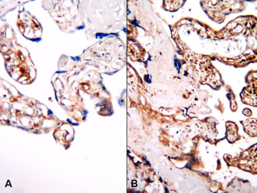 b-FGF expression in placental tissues, A; Normal placental villous displaying weak b-FGF immune reaction, B; Strong b-FGF expression in IUGR placenta (B-SA peroxidase, DAB, A; B; ×200).