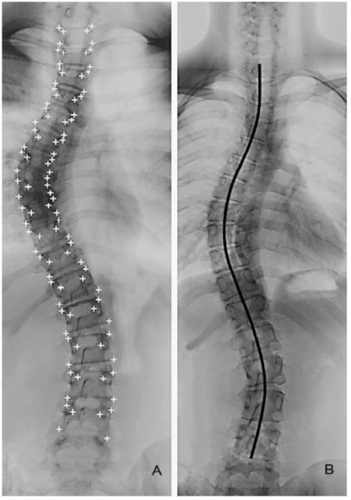 listhesis and scoliotic curve Spondylolisthesis had been this is not unusual in spondylolisthesis and sometimes the scoliotic curvature necessary in the mild curves.