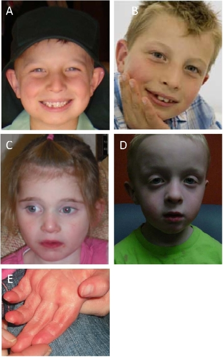 Developmental Disabilities Medlineplus >> pone-0012462-g002:A Genotype-First Approach for the Molecular and Clinical Characterization of ...