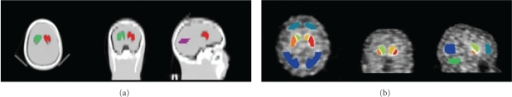 Striatal (red, green) and occipital (purple) volumes of interest used for the phantom study defined using the CT image of the phantom acquired with water in the background chamber and air in the striatal chambers (a). For the patient study using the Hermes Brass software striatal (light green, orange, red, yellow) and occipital (dark blue) volumes were used (b). Frontal (light blue) and cerebellar (green) volumes were not used for this study.