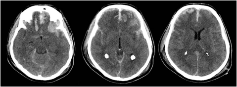 A fifty nine year old male had suffered a fall.Initial Glasgow coma score was recorded as six (Eye: 1, Motor: 4, Verbal response: 1). His right pupil was unreactive. Left pupil was reactive. There were no other injuries. CT scan of the brain revealed diffuse petechial haemorrhages, traumatic subarachnoid haemorrhage and non evacuated haematoma.