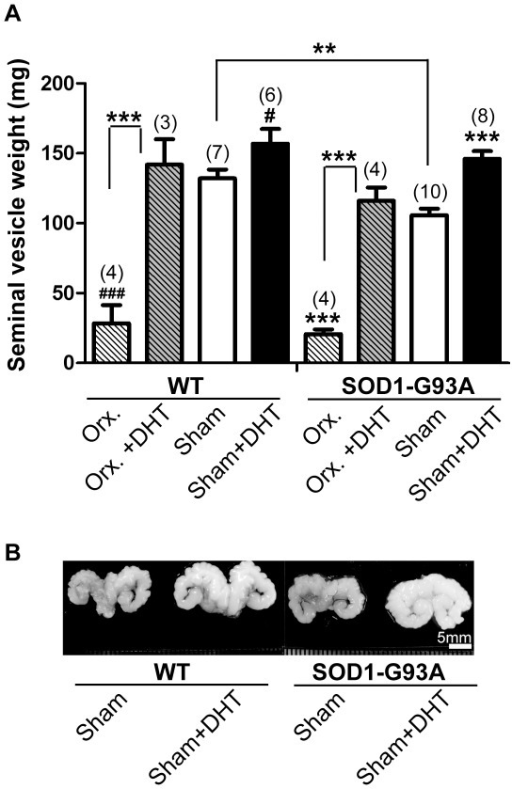 DHT increases whereas orchidectomy decreases the seminal vesicle weight in wild-type and SOD1-G93A mice.A: The weight of seminal vesicles was measured after removing the adhering tissue and fluid. Wild type (WT) mice and SOD1-G93A (SOD1) mice were implanted with either a DHT-filled or an empty silastic tube. Orchidectomy and/or silastic tube implant was performed at postnatal day 75 (P75), and the seminal vesicle weight was measured at P120. DHT-treated WT mice showed a 19% increase in seminal vesicle weight (156±10.6 mg, p = 0.042) compared with control WT mice (132.1±6.4 mg). In SOD1 mice, the DHT-filled silastic tube also increased the seminal vesicle weight by 38% (146.1±5.5 mg, p = 0.0003) compared with control SOD1 mice (105.8±4.6 mg). Conversely, orchidectomy decreased the seminal vesicle weight in both WT mice (28.4±13 mg, p<0.0001) and SOD1 mice (20.8±3.5 mg, p<0.0001) compared with control WT and SOD1 mice, respectively. SOD1 control mice showed 20% reduced seminal vesicle weight compared with WT control mice (p = 0.0039). Sample size is indicated in ( ) for each group. Data are mean ± SEM. # p<0.05, ### p<0.001 (compared with age-matched WT mice), ** p<0.01, ***p<0.001 (compared with control SOD1 mice). B: WT and SOD1 mice were implanted with either a DHT-filled or an empty silastic tube at P75, and the seminal vesicles were obtained at P120. Representative pictures of the seminal vesicles are shown. Scale bar = 5 mm.