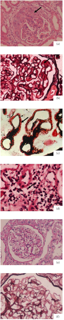 "Features of the histopathology of active lupus nephritis. (a) Glomerular mesangial cells proliferation accompanied with cellular crescents (arrow showed). (HE staining, ×200). (b) Subepithelial immune deposits to form a ""platinum ear"" (arrow showed). (PASM staining, ×200). (c) Immune deposits in basement membrane. The ""spikes bristle"" can be observed in basement membrane (arrow showed). (PASM staining, ×1000). (d) Renal tubular epithelial cells shed accompanied with interstitial inflammatory infiltration (arrow showed). (HE staining, ×400). (e) Normal glomerulus without mesangial cells proliferation. (PAS staining, ×200). (f) Normal glomerulus without thick basement membrane. (PASM staining, ×1000)."