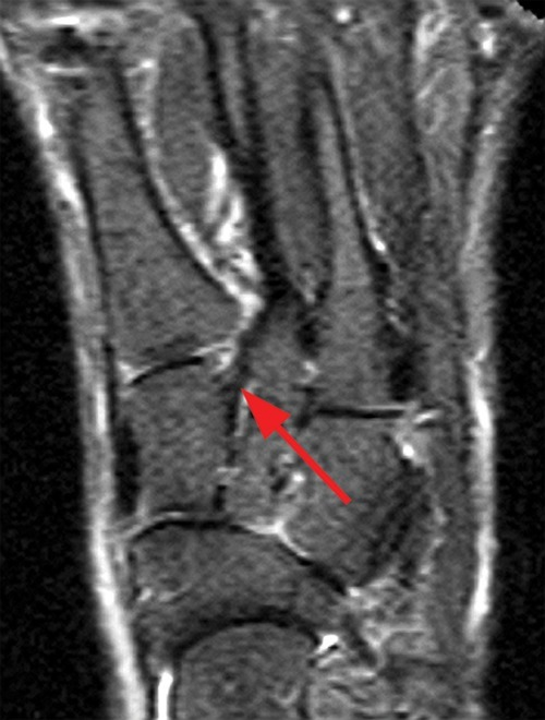 Mri Foot Anatomy Image collections - human body anatomy