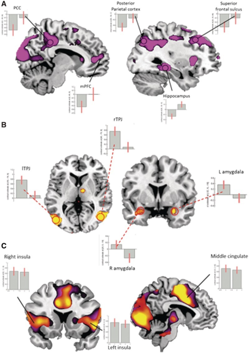 Real and Imagine Moral networks:(A) Imagine Moral Network: Comparing the Imagine PvG Decideevent > Real PvG Decide event reveals significant activation inthe PCC, mPFC, posterior parietal cortex, superior frontal sulcus and hippocampus.A priori ROIs (indicated by circles and corrected atP < 0.05 FWE) and parameter estimates revealthat hypothetical moral decisions map closely onto the brain's constructionsystem. (B). Real Moral Network: Contrasting the Decide event of theReal PvG > Imagine PvG activates bilateral TPJ and amygdala. Apriori ROIs and parameter estimates for these regions were found to be moresignificant during the Real decision than during the Imagine decision.(C). Shared Moral Network: A conjunction analysis of Real andImagine moral decisions reveals robust activation in the empathy for pain matrix,and parameter estimates of the middle cingulate and bilateral insula illustratecomparable activations for both conditions. All coordinates in MNI space andresults portrayed on sections of the mean structural scan atP < 0.005 uncorrected. Both whole brain analysis(P < 0.001 uncorrected) and a priori regions of interest (FWEP < 0.05) were used for all contrasts. A complete list ofactivated areas and ROIs can be found in Tables2–4.
