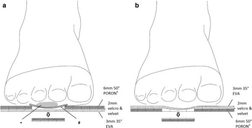 Coronal section view of the insole. (a) The plug-removed insole for an ulcerative foot. * A wound under MT2-3 area. # Wound dressings between the wound and insole. (b) The plug-removed insole for a foot without current ulcer.