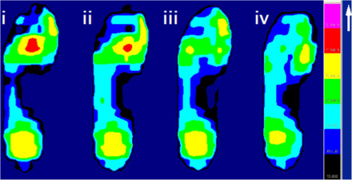 The graphs of mean peak plantar pressure of a patient with ROI located in the MT2-3 area in the four experimental insole conditions. (i) baseline; (ii) pre-plug removal; (iii) post-plug removal; and (iv) post-plug removal plus arch support. Note the mean peak plantar pressure value of ROI is reduced gradually following removal of the plugs and addition of an arch support.