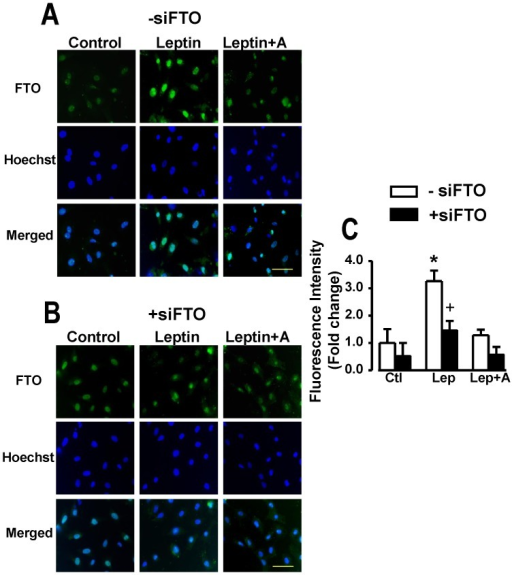 Immunofluorescence identification of FTO in cardiomyocytes.Panel A demonstrates immunofluorescence images and their quantitative assessment demonstrating nuclear localization of FTO in cardiomyocytes and its upregulation by leptin whereas panel B shows identical data in myocytes transfected with siFTO illustrating suppression of FTO. Corresponding images of myocytes stained with the nuclear dye Hoechst 33342 as well as merged images are also presented. Quantitative data in panel C are presented as mean+SEM, N = 8. *P<0.05 from respective control (Ctl) group; +P<0.05 from respective group in the absence of siFTO (−siFTO). Lep, leptin; A, leptin receptor antagonist. Horizontal bar in bottom right images indicates 200 µm.