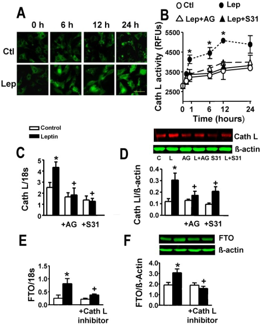 Regulation of cathepsin L (Cath L) expression and activity by leptin and the role of cathepsin L in leptin-induced FTO upregulation.Panel A shows time-dependent increases in cathepsin L immunofluorescence intensity following leptin (Lep) addition. Control (Ctl) group depicts myocytes not treated with leptin. Panel B provides evidence for leptin-induced increase in cathepsin L activity following leptin administration and its attenuation by the JAK2 inhibitor AG490 (AG) and STAT3 inhibitor S31–201 (S31). RFUs, relative fluorescence units. Panels C and D demonstrate increased gene and protein expression, respectively, of cathespsin L in cardiomyocytes treated with leptin and their prevention by inhibitors of JAK2 and STAT3. For representative Western blots L = leptin. Panels E and F demonstrate prevention of leptin-induced FTO gene and protein upregulation by the cathepsin L peptide inhibitor. Quantitative data are presented as mean ± SEM. N = 7. *P<0.05 from all other groups in panel B and respective control group in panels C to F. +P<0.05 from the leptin alone group in panels C to F. For panels A and B, time refers to hours after leptin addition. Horizontal bar in bottom right images indicates 200 µm.